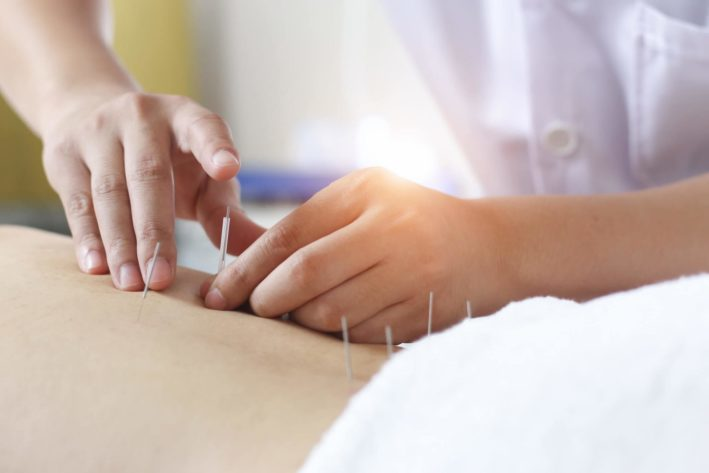 hands performing acupuncture to patient